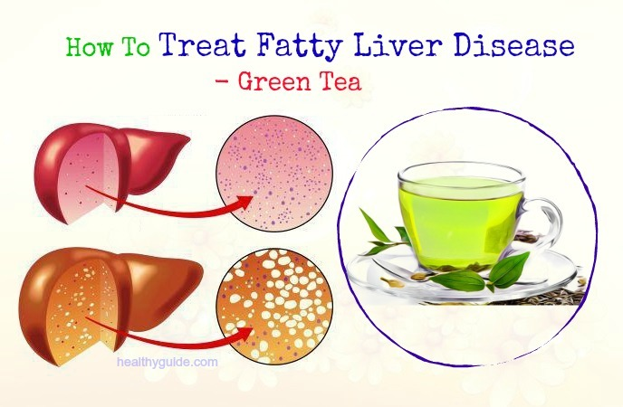 how to treat fatty liver disease