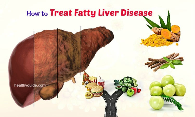10 Tips How to Treat Fatty Liver Disease Symptoms Naturally at Home with Diet