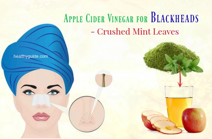 apple cider vinegar for blackheads