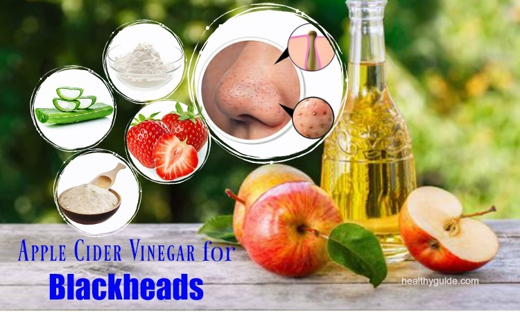 18 Tips How to Use Apple Cider Vinegar for Blackheads and Whiteheads Treatment
