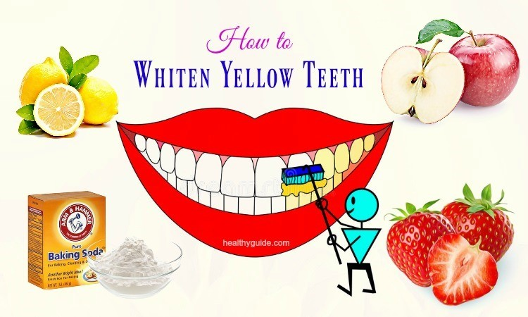 10 Tips How to Whiten Yellow Teeth from Smoking Fast Overnight Naturally