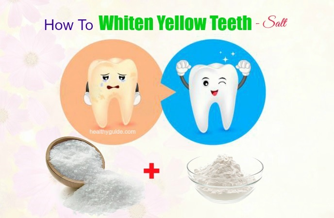 how to whiten yellow teeth